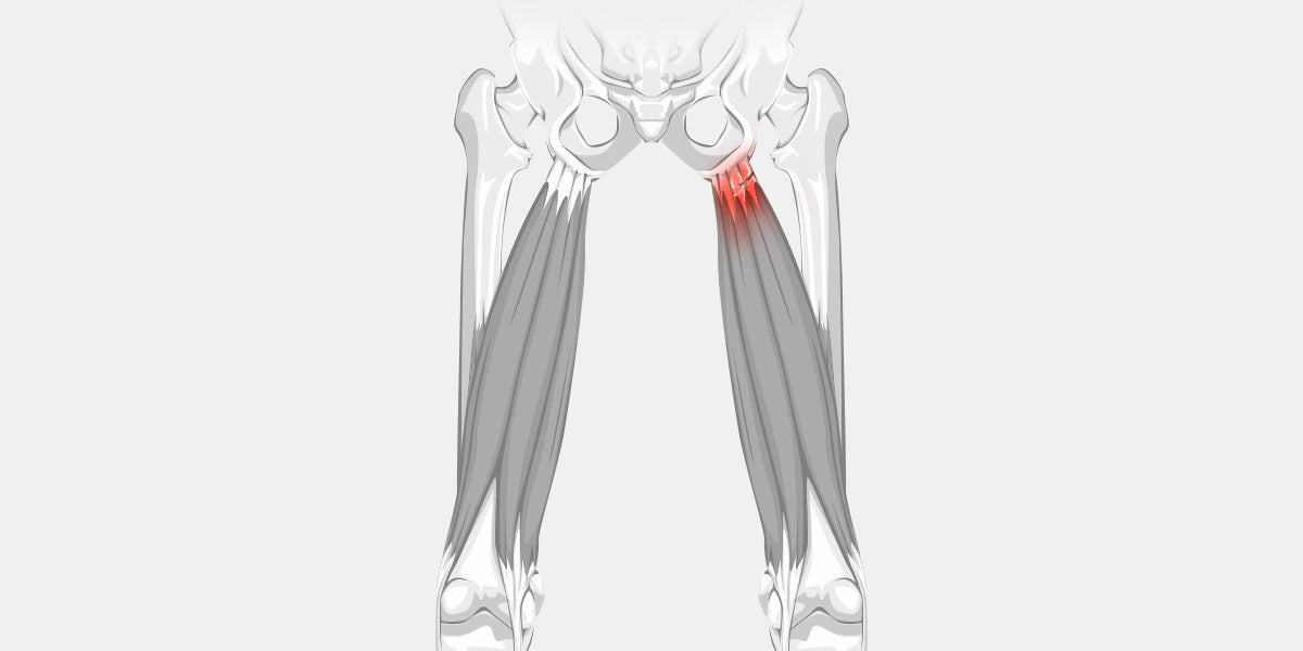 Hamstring Tendonitis The Complete Injury Guide Vive Health