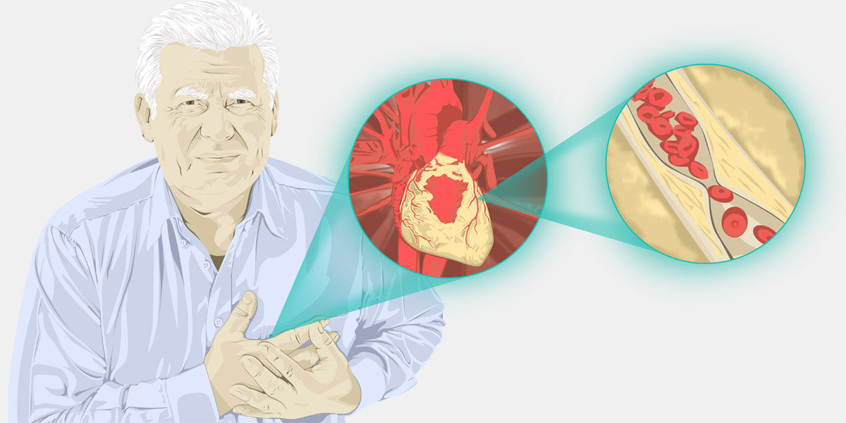 Man with Heart Attack Illustration