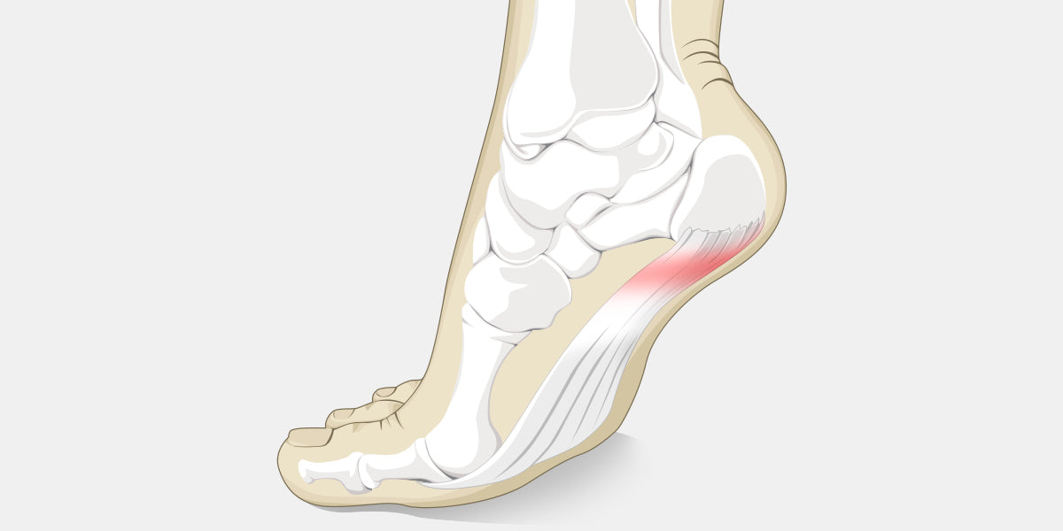 Heel Spur Illustration