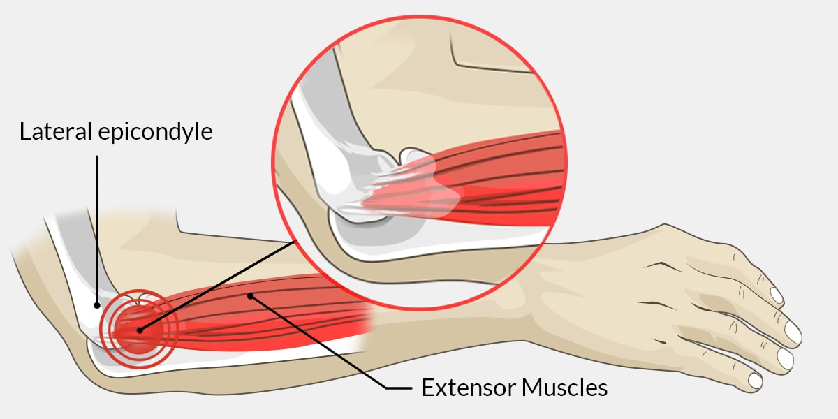 Hyperextended Elbow The Complete Injury Guide Vive Health