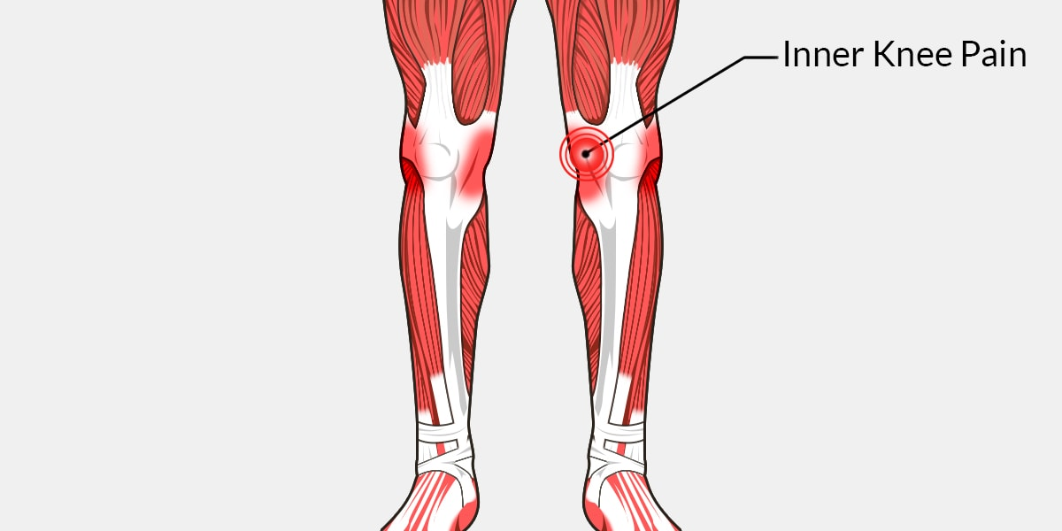 Inner Knee Pain - The Complete Injury Guide - Vive Health
