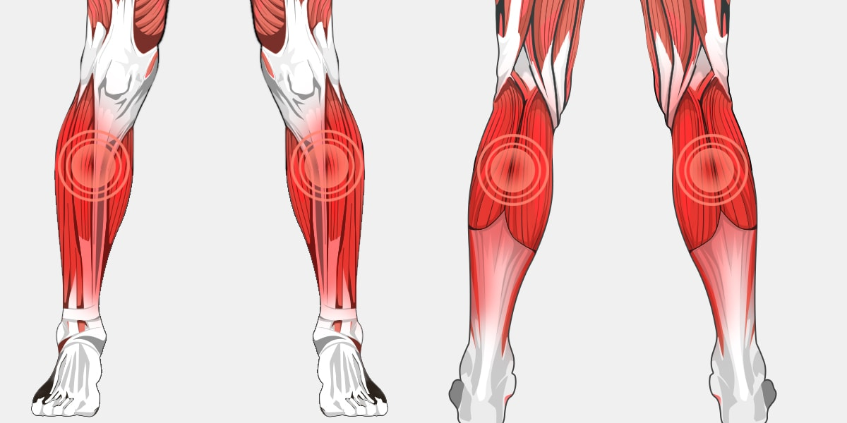 Lower Leg Pain Diagram