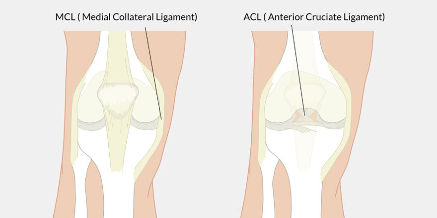 MCL versus ACL