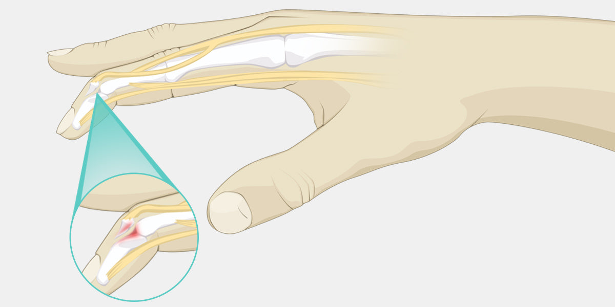 Mallet Finger Illustration