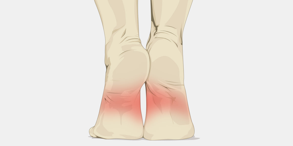 pain in arch of foot illustration