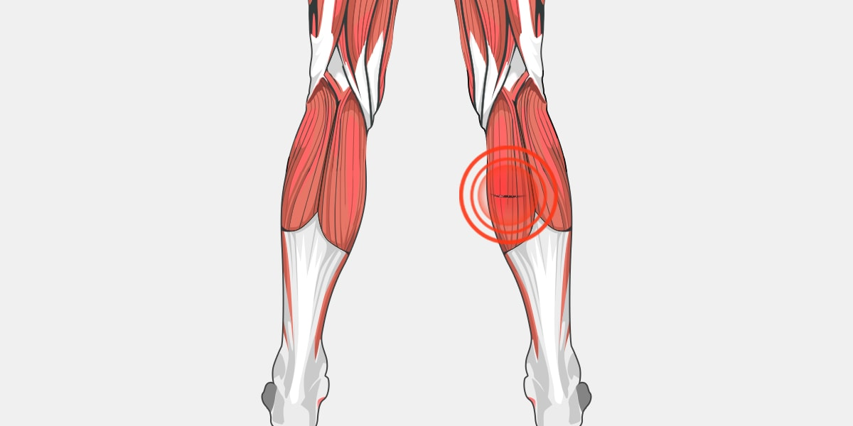 Pulled Calf Muscle The Complete Injury Guide Vive Health
