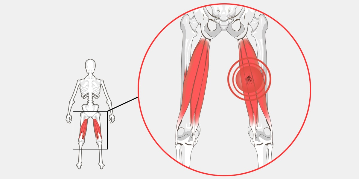 Pulled Hamstring The Complete Injury Guide Vive Health