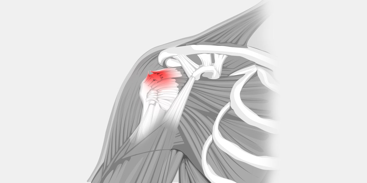 Rotator Cuff Tear Diagram