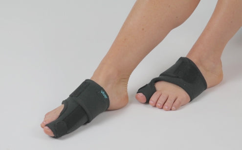 Feet with bunion splint