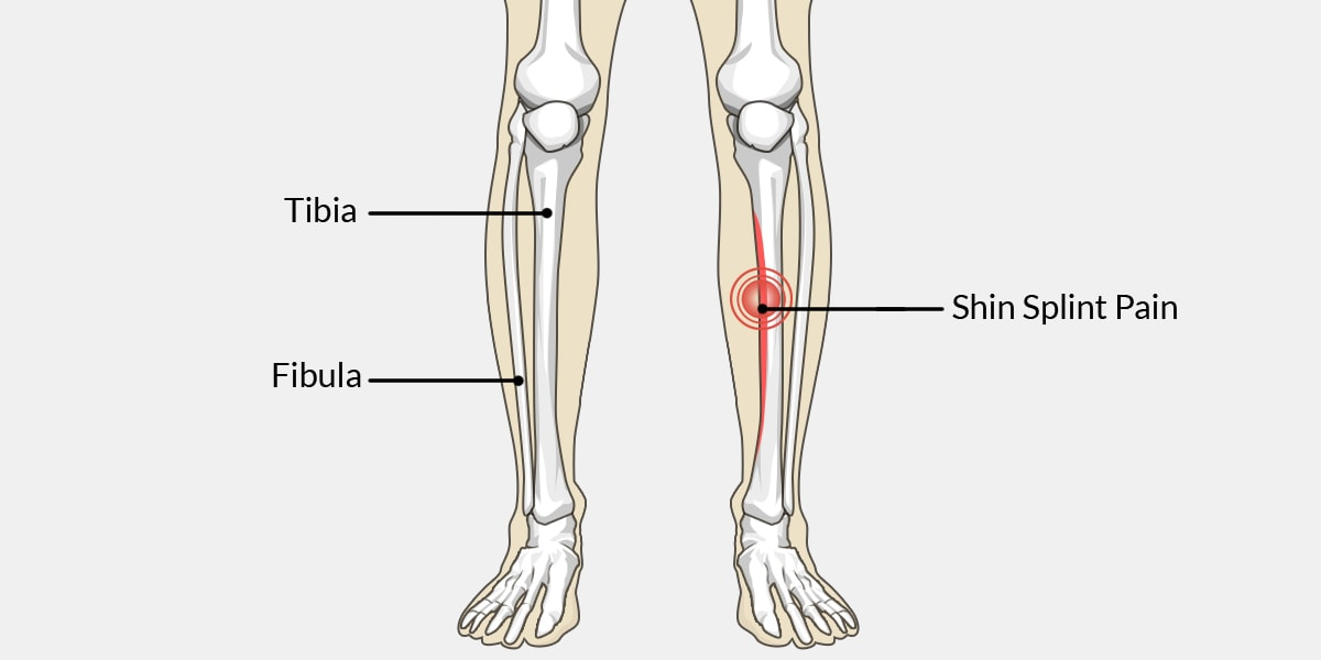 Shin Splints – The Complete Injury Guide - Vive Health