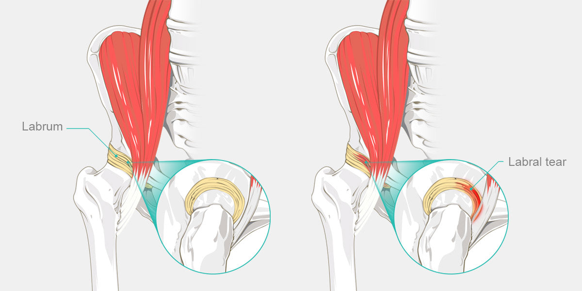 Snapping Hip Syndrome Diagram