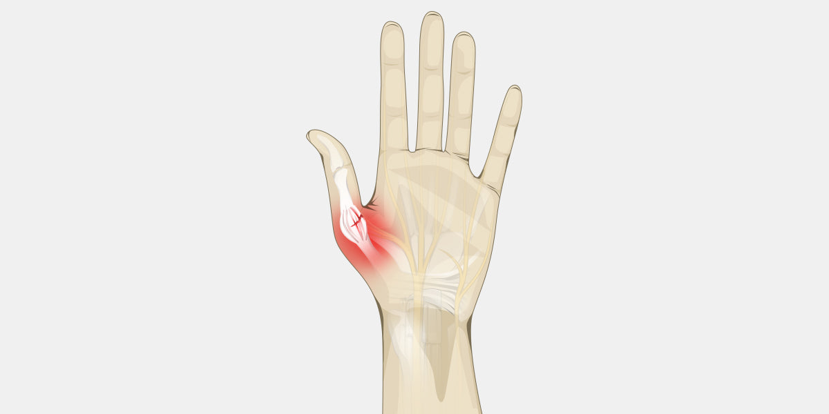 Sprained Thumb - The Complete Injury Guide