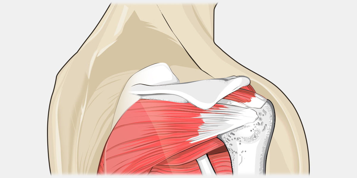 Swimmer\'s Shoulder – The Complete Injury Guide - Vive Health
