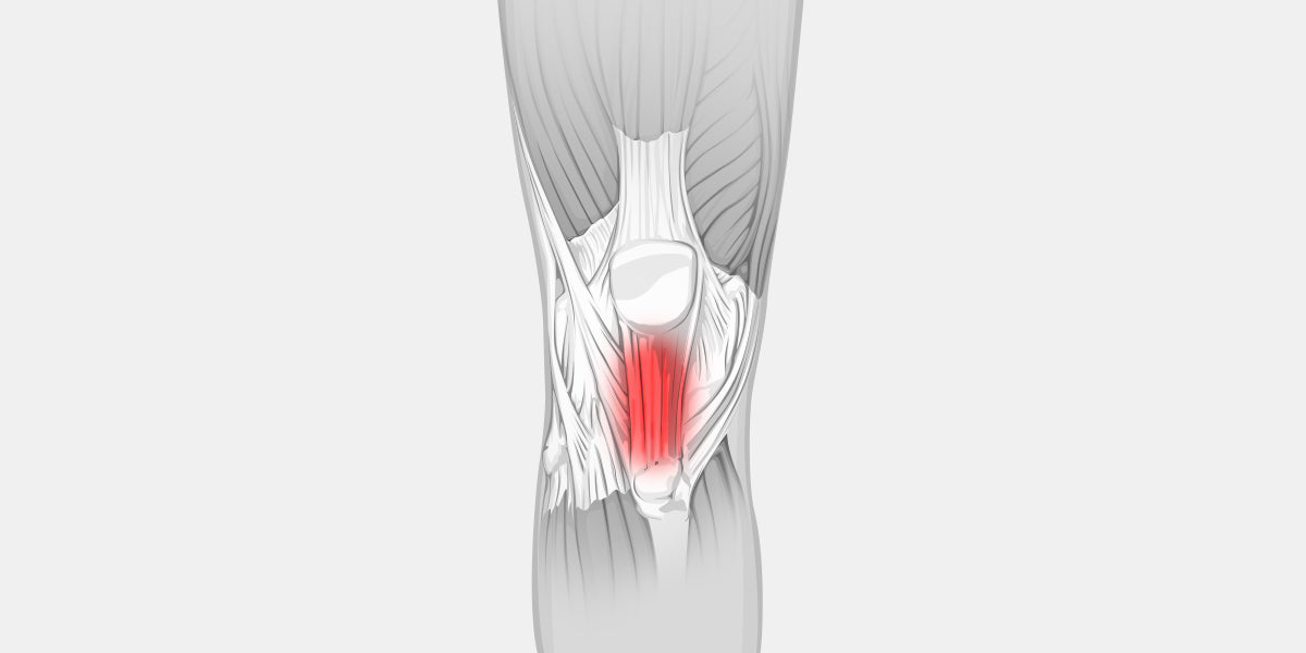 Tendonitis Knee Illustration
