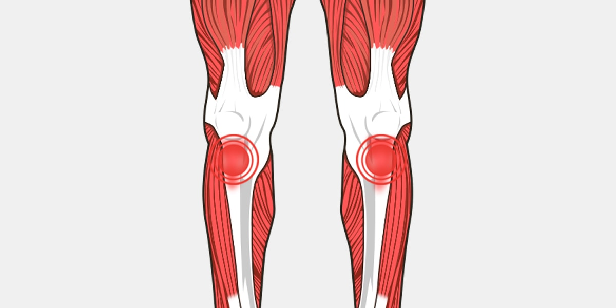 Tendonitis knee the complete injury guide vive health tendonitis knee diagram ccuart Images