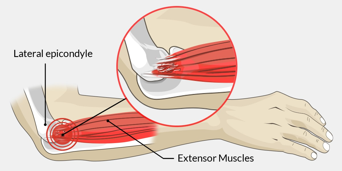 Tennis Elbow - The Complete Injury Guide - Vive Health