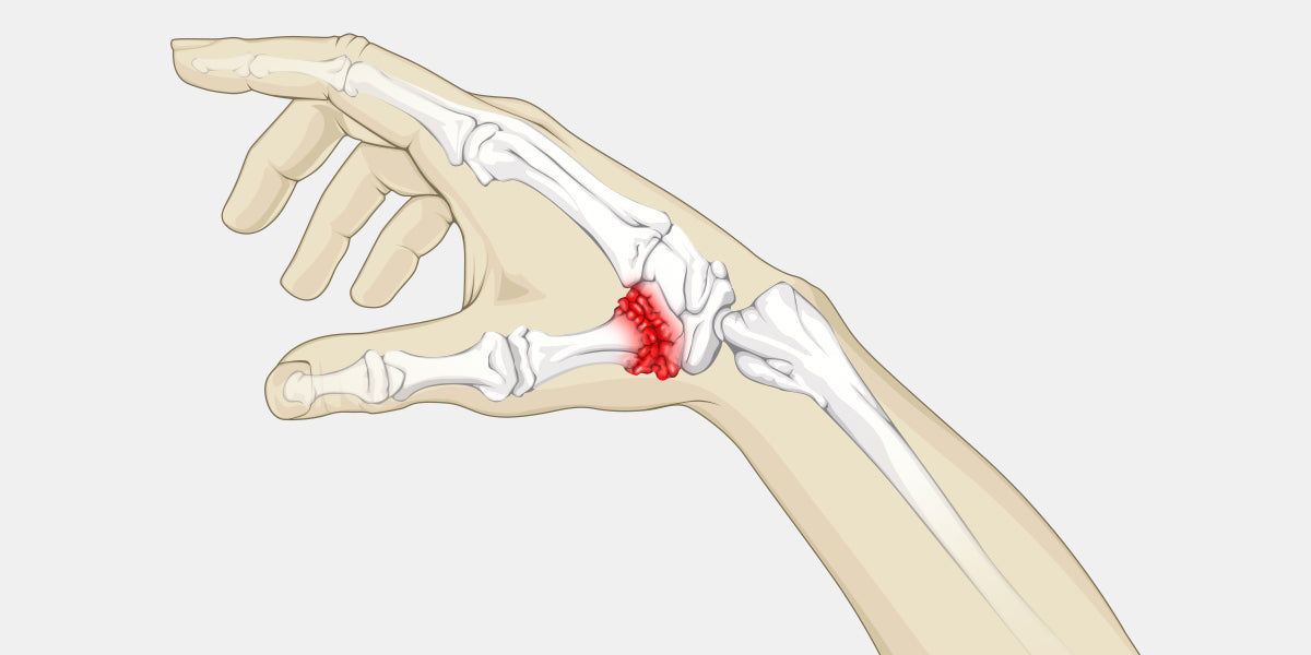Thumb Arthritis Illustration