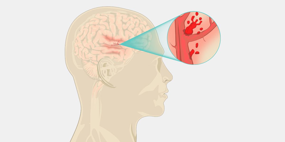Vascular Dementia Illustration