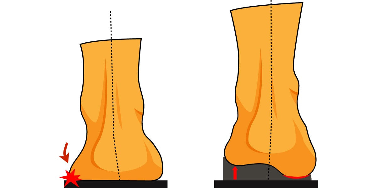 a foot without and with an orthotic