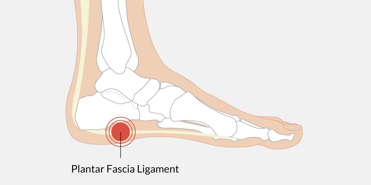 pain in arch of foot