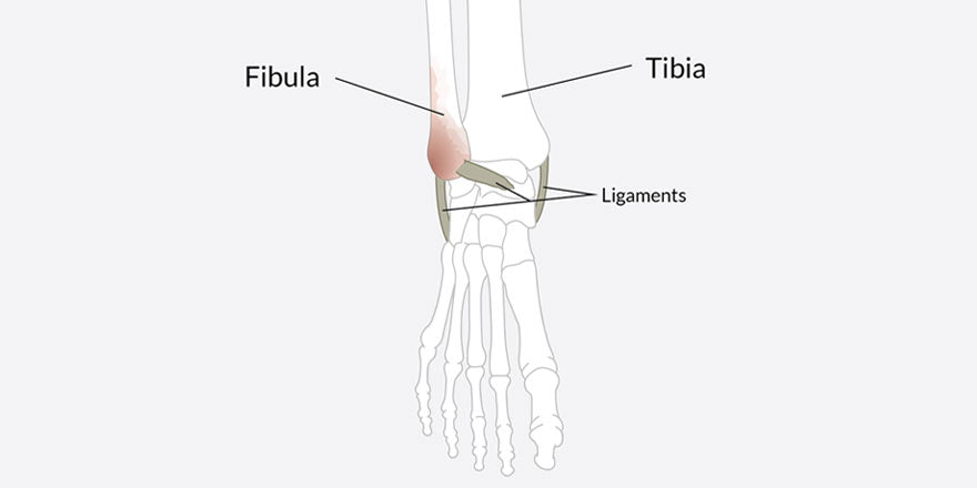 broken fibula ankle