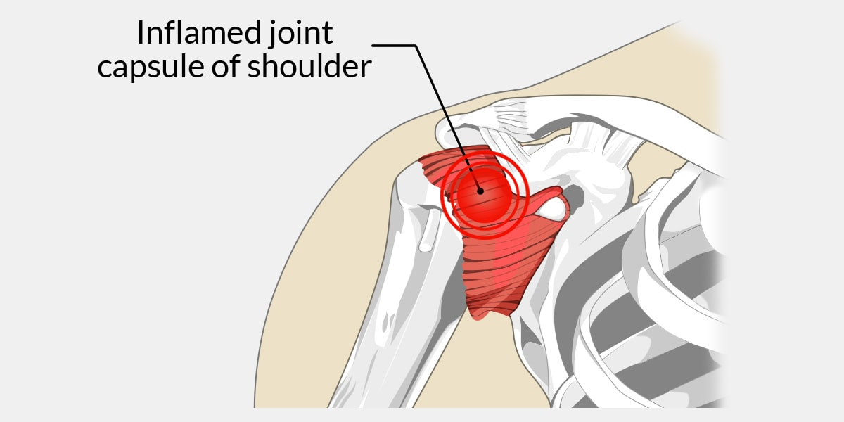 Frozen Shoulder - The Complete Injury Guide