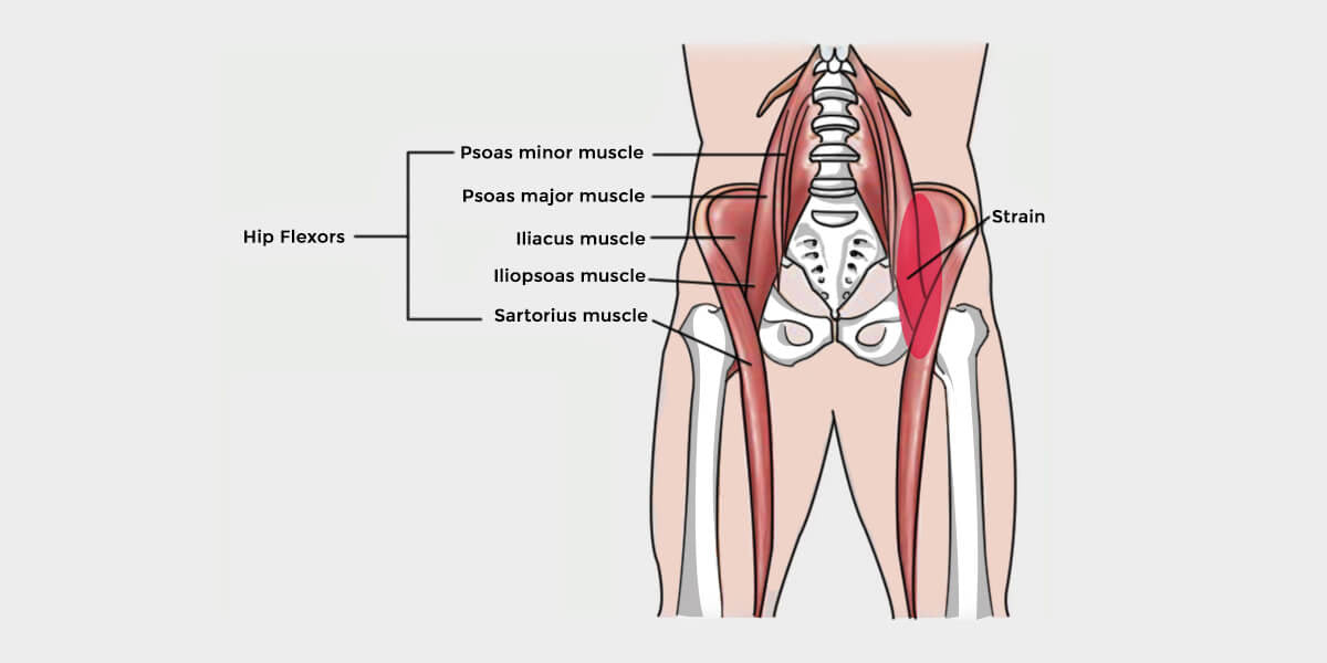 Hip Flexor Strain - The Complete Injury Guide - Vive Health