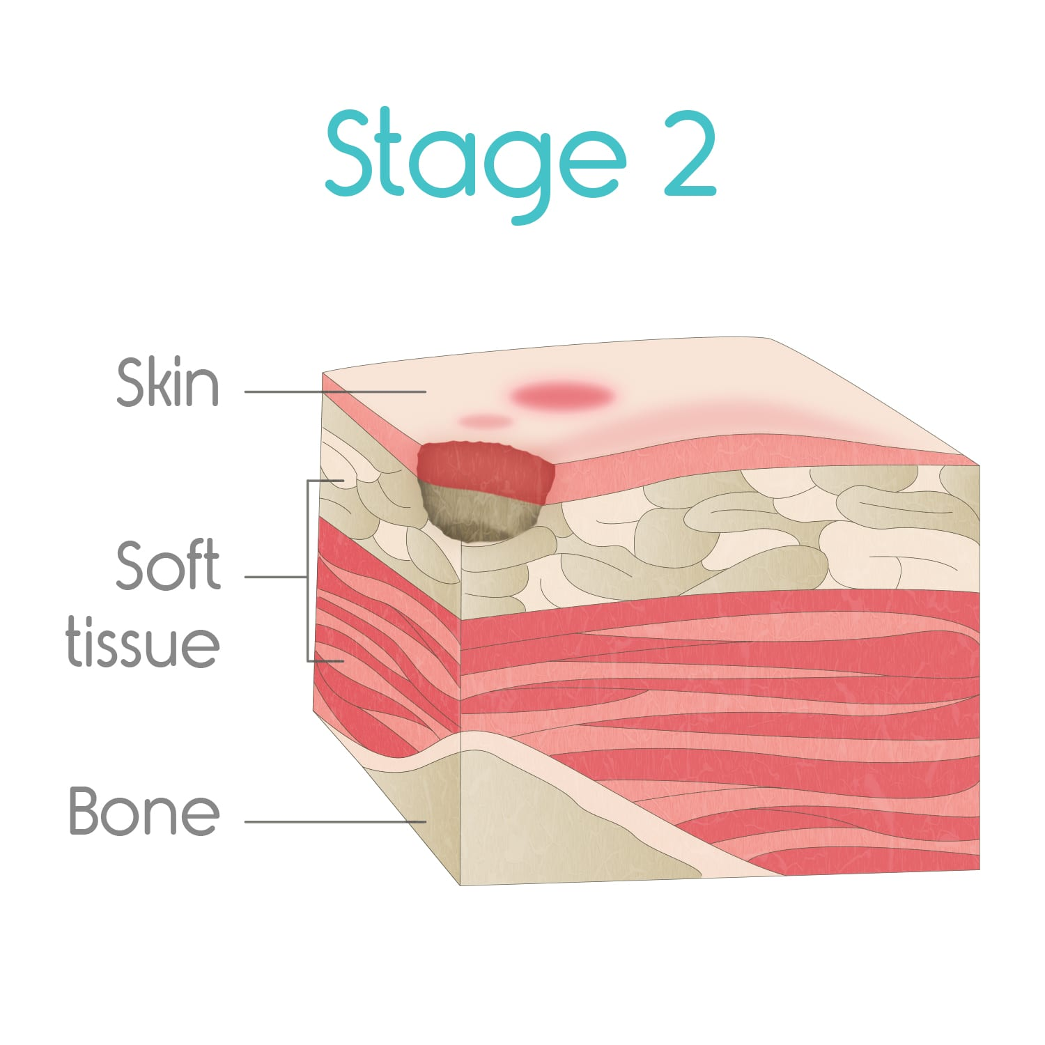 stage two bed sores