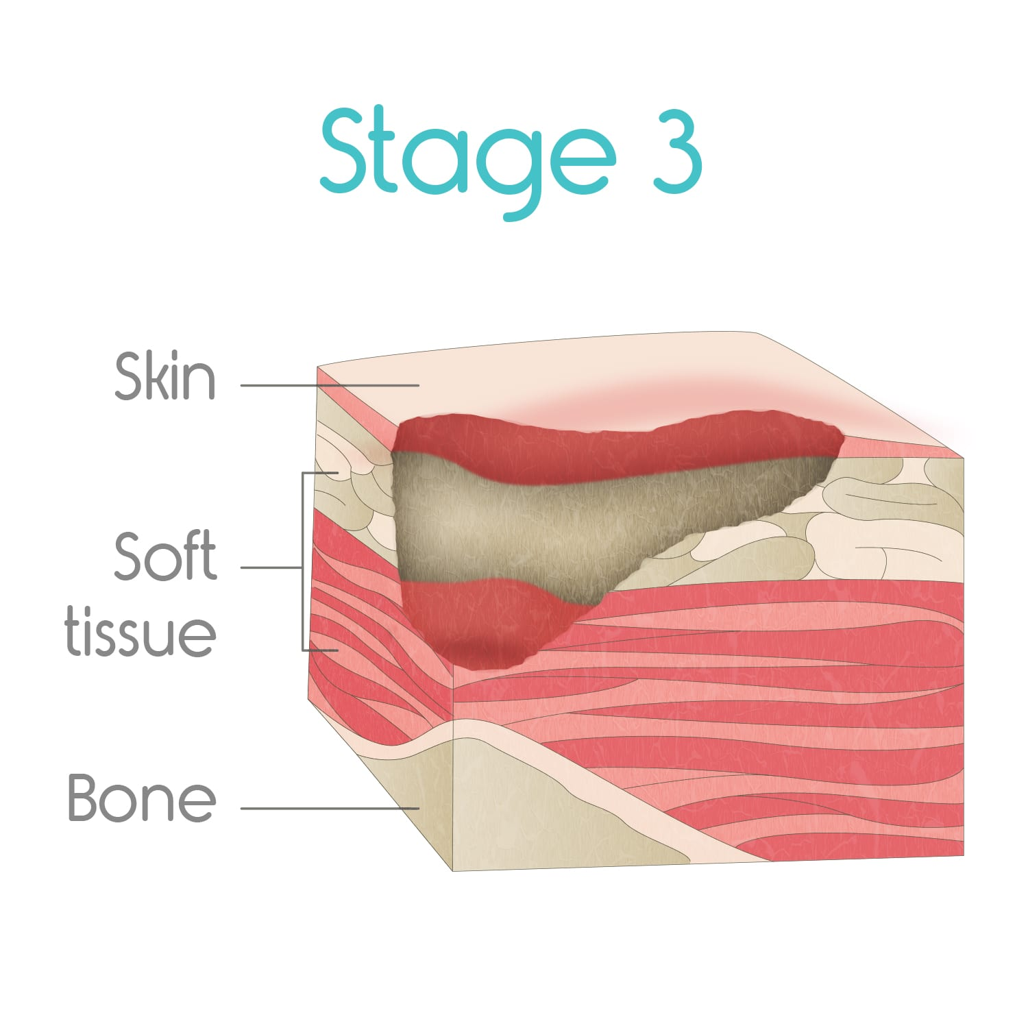 stage three bed sores