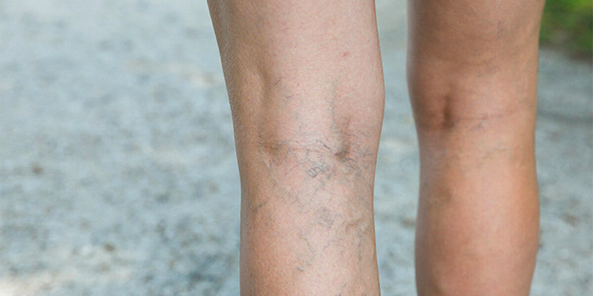compression leg sleeves for varicose veins