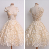 Slim Zipper Lace Princess Dress