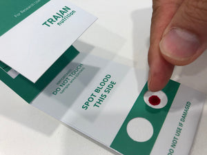 Blood spot tests set to replace costly vials