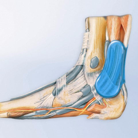 Achillo Train Achillies Tendon Support