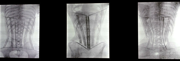 X Ray showing the damage that corsets caused.