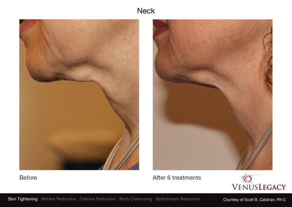 skin tightening victoria bc