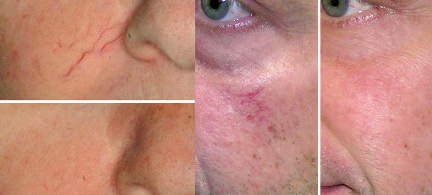Spider veins red capillaries treatment IPL victoria bc