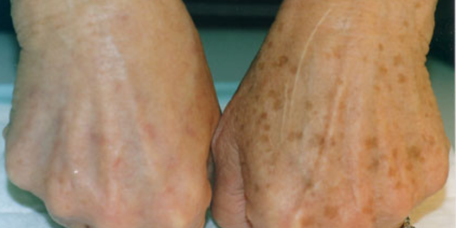 sun damage and age spots on hands. Treatment Victoria BC