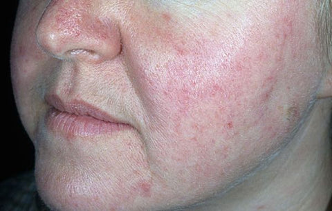 signs and symptoms of rosacea victoria
