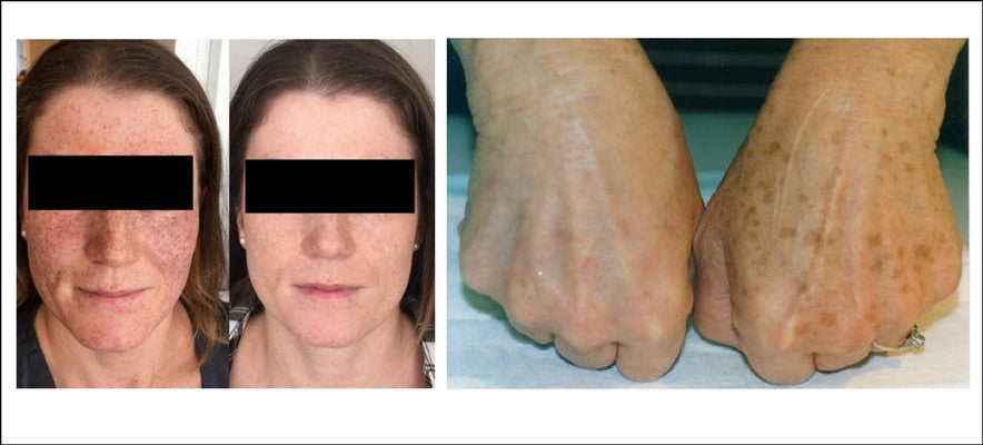 intense pulsed light brown spot treatment pigmentation victoria bc