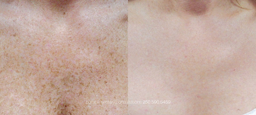 pigmentation treatment victoria bc photofacial