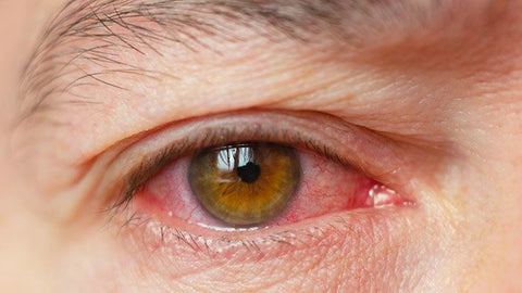 eye redness associated with dry eye syndrome