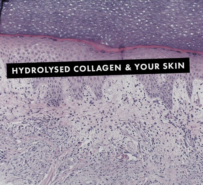 What is Hydrolysed Collagen?