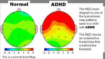 Before NADH / After NADH view of the brain activity