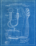 An image of a(n) Blood Pressure Cuff 1914 - Patent Art Print - Blueprint.