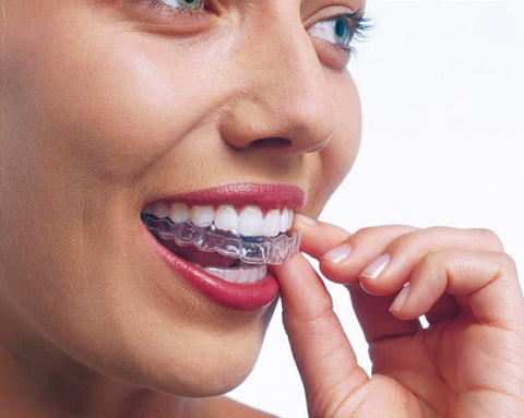 How To Look After Your Invisalign