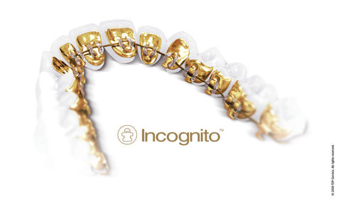 3 Benefits of using Incognito