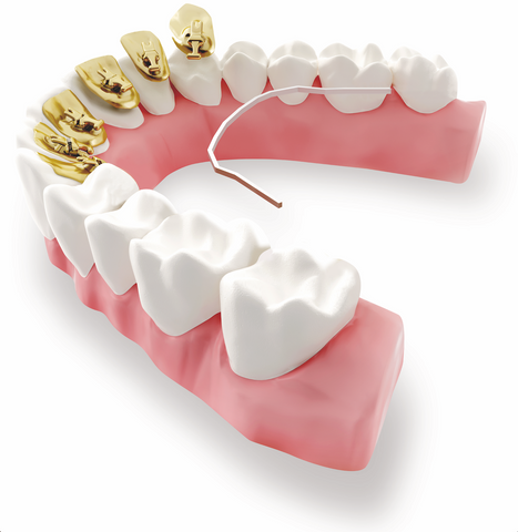 How Effective are Lingual Braces?