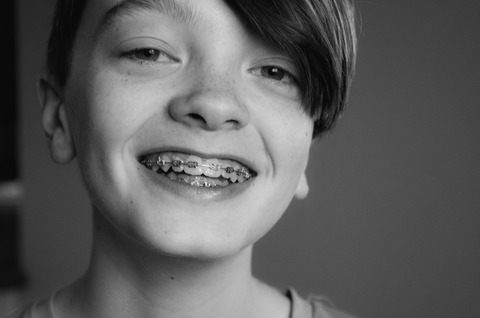 The Benefits of Early Orthodontics Treatment