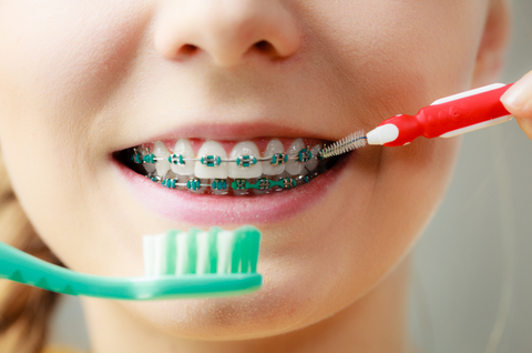 Tips for solving simple Braces Emergencies at Home