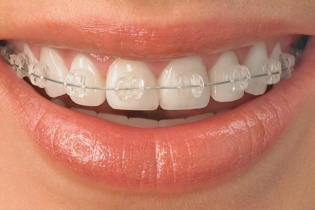 Metal Braces and Ceramic Braces: Which are Right for You?